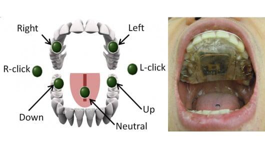 tonguedrive